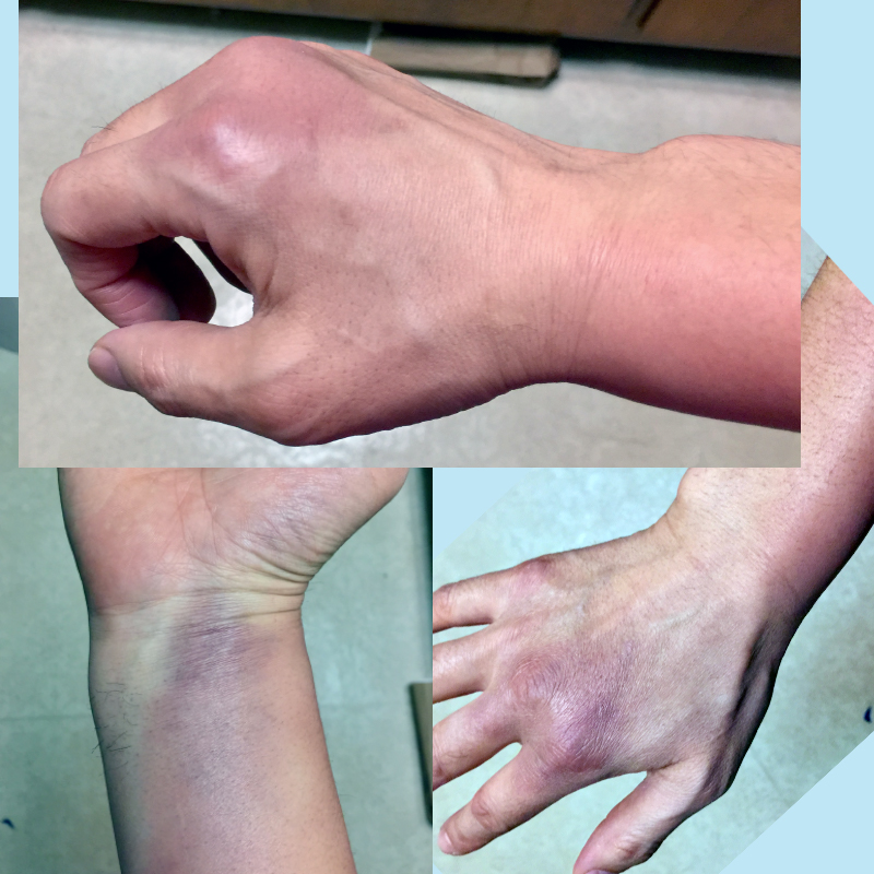 Bruises from Receiving Kote Strikes